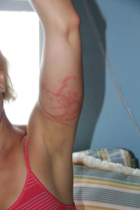 Melanie Zamichielli's box jellyfish sting
