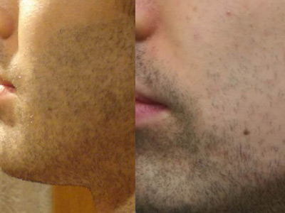 3 months post-operation on left.