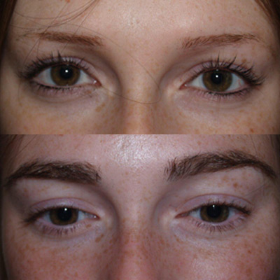 Minoxidil For Eyebrows Reviews
