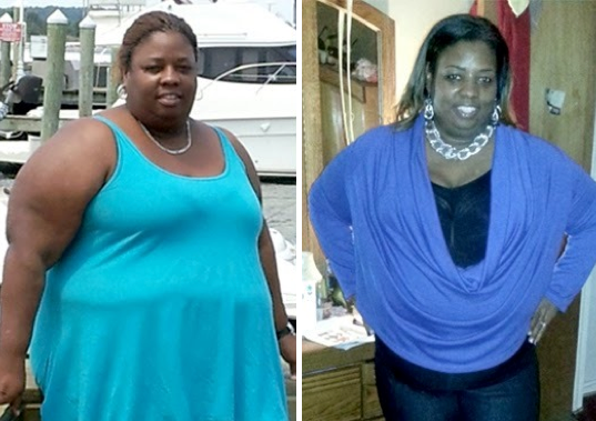 Before & After Bariatric Surgery: Three Inspirational Weight