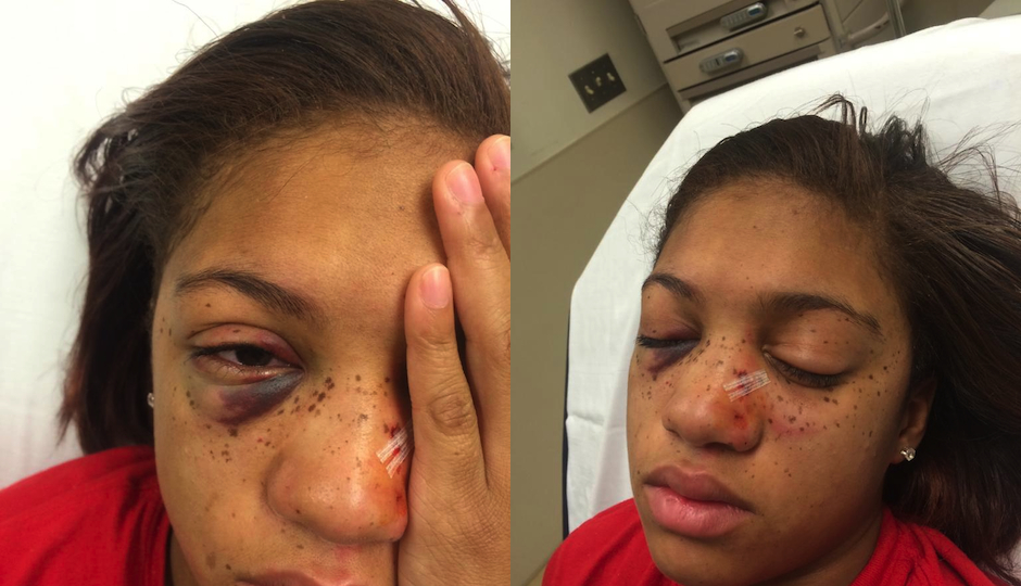 teen-attacked-septa-trolley