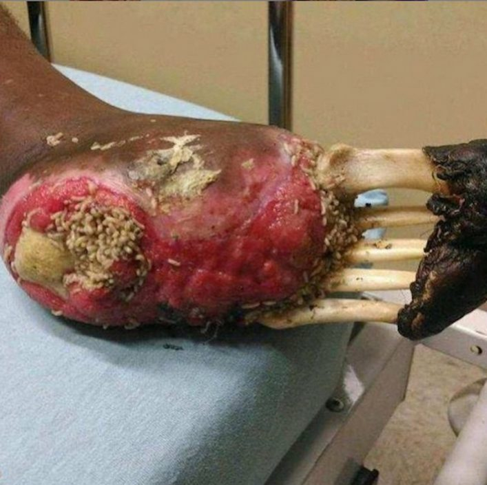 maggots in breast - photo #40