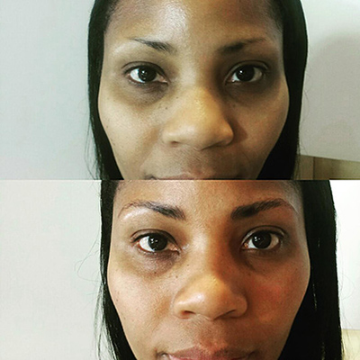 Microblading Before and After2