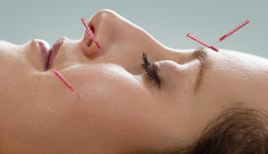 Acupuncture facial philadelphia