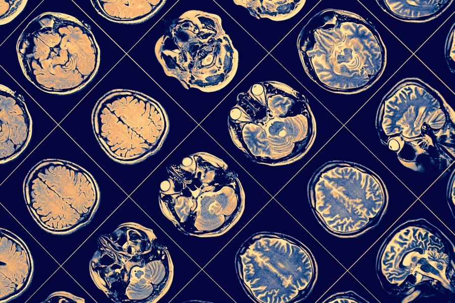 A New Alzheimer's Drug Is Being Tested in the Philadelphia Region