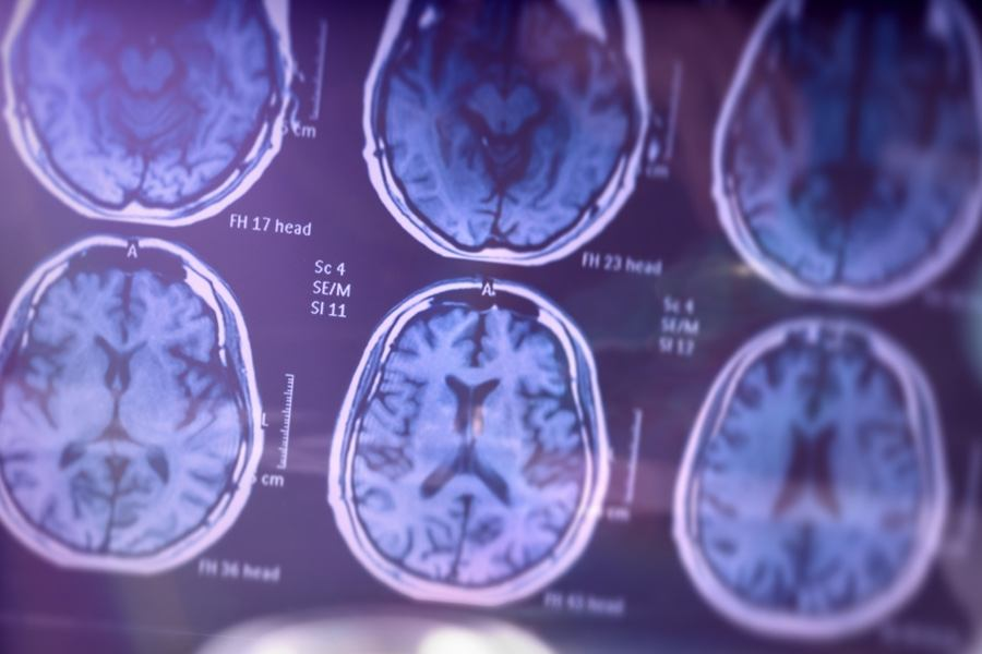 Why People of Color Are More Likely to Develop Alzheimer's Disease